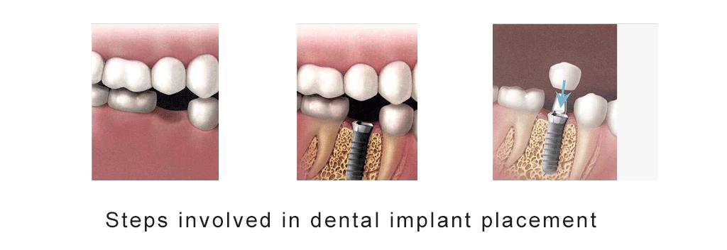 Mukha Facial Surgery & Dental Implant Center